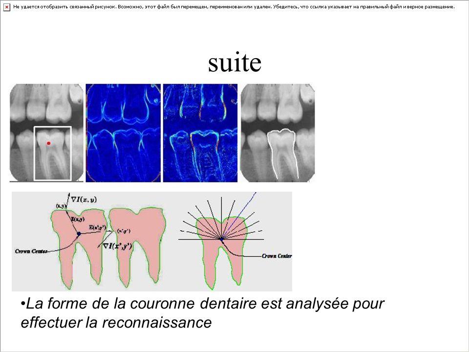 suite La forme de la couronne dentaire est analysée pour effectuer la reconnaissance