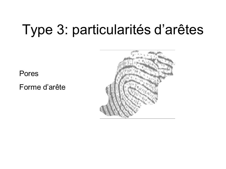 Type 3: particularités d'arêtes