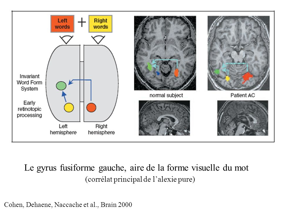 Le gyrus fusiforme gauche, aire de la forme visuelle du mot