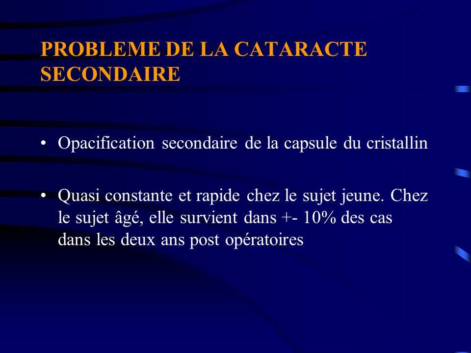 PROBLEME DE LA CATARACTE SECONDAIRE