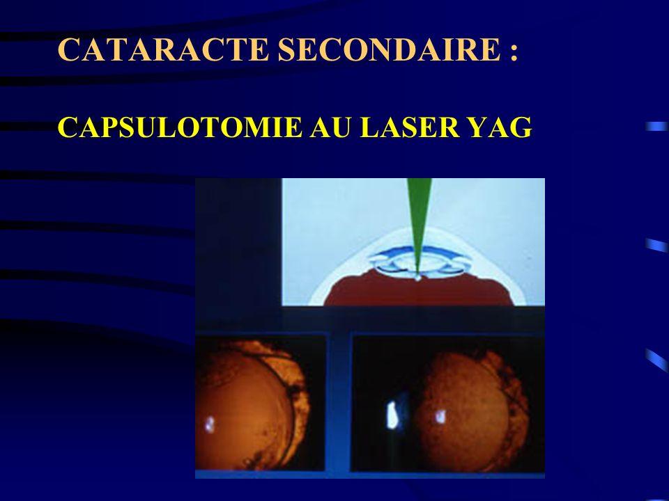 CATARACTE SECONDAIRE : CAPSULOTOMIE AU LASER YAG