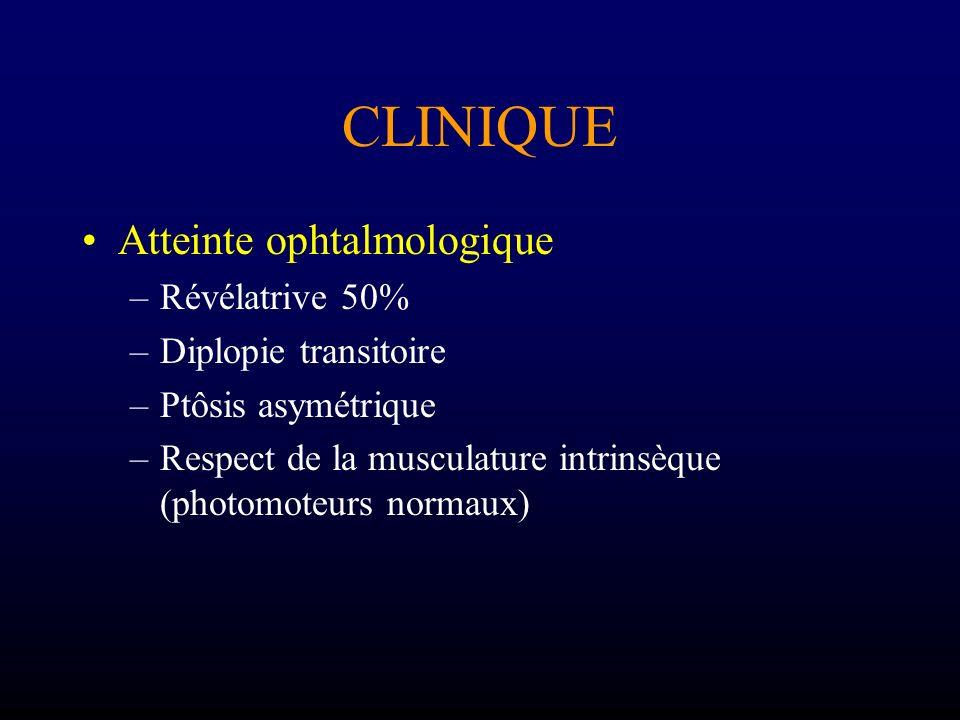 CLINIQUE Atteinte ophtalmologique Révélatrive 50% Diplopie transitoire