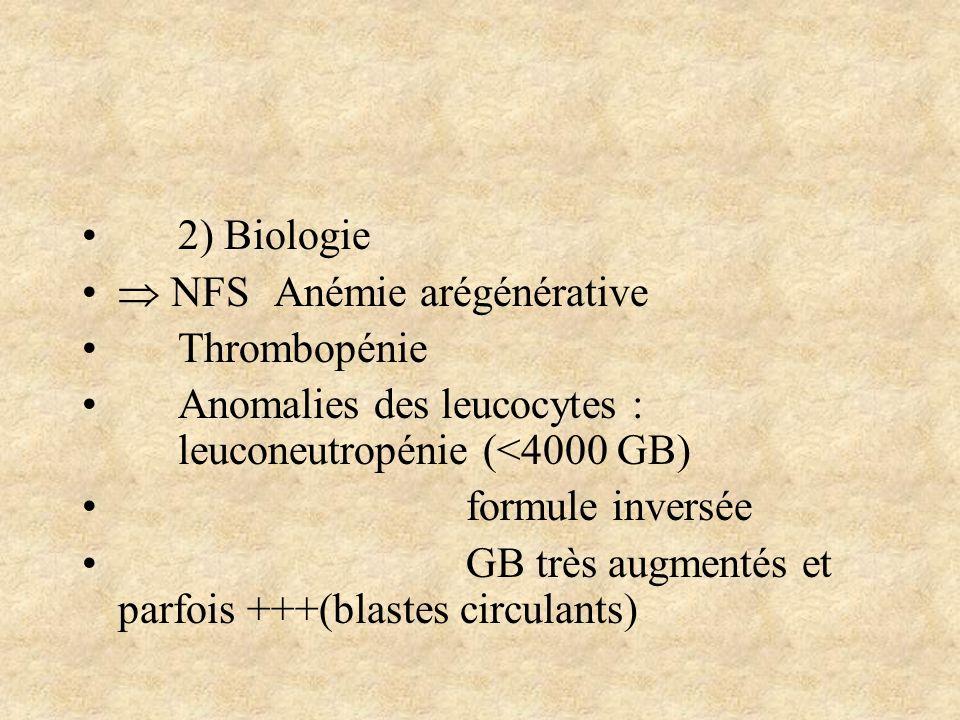 2) Biologie  NFS Anémie arégénérative. Thrombopénie. Anomalies des leucocytes : leuconeutropénie (<4000 GB)