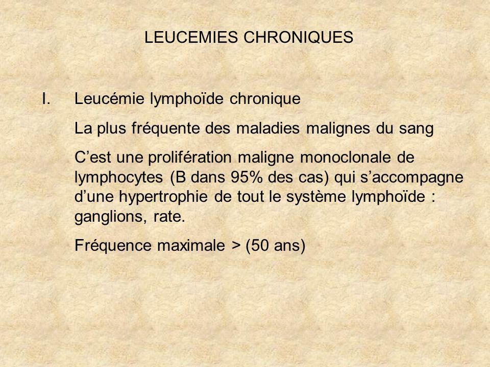 LEUCEMIES CHRONIQUES Leucémie lymphoïde chronique. La plus fréquente des maladies malignes du sang.