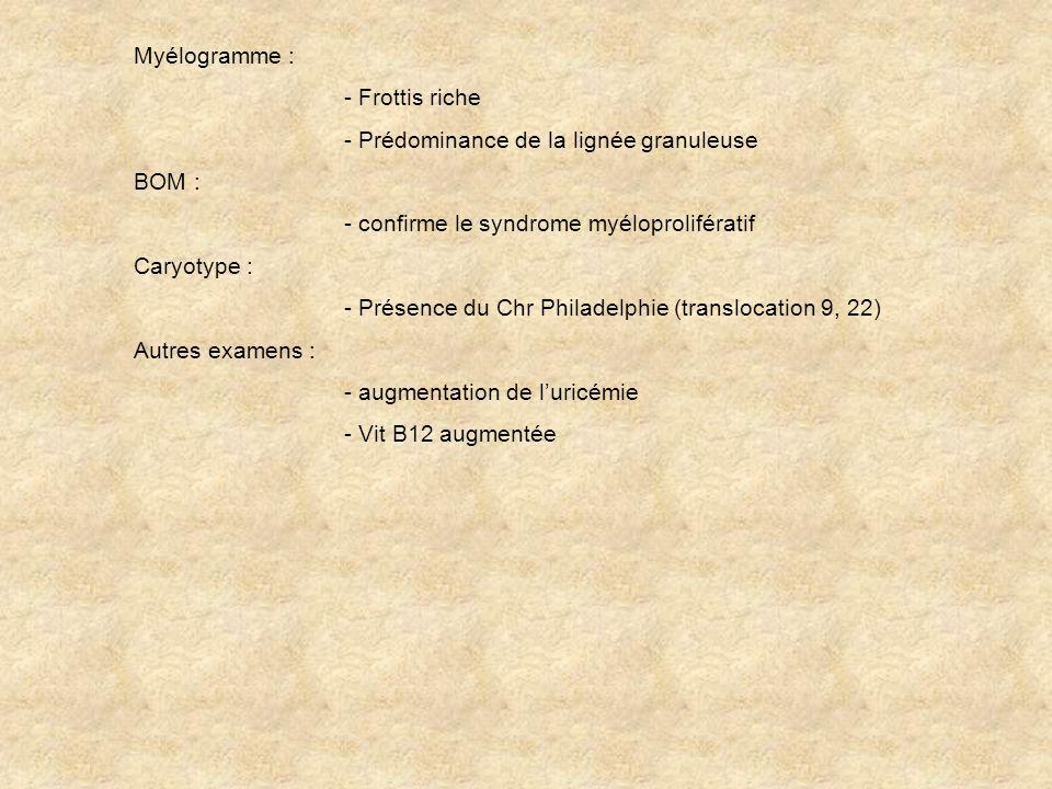 Myélogramme : - Frottis riche. - Prédominance de la lignée granuleuse. BOM : - confirme le syndrome myéloprolifératif.