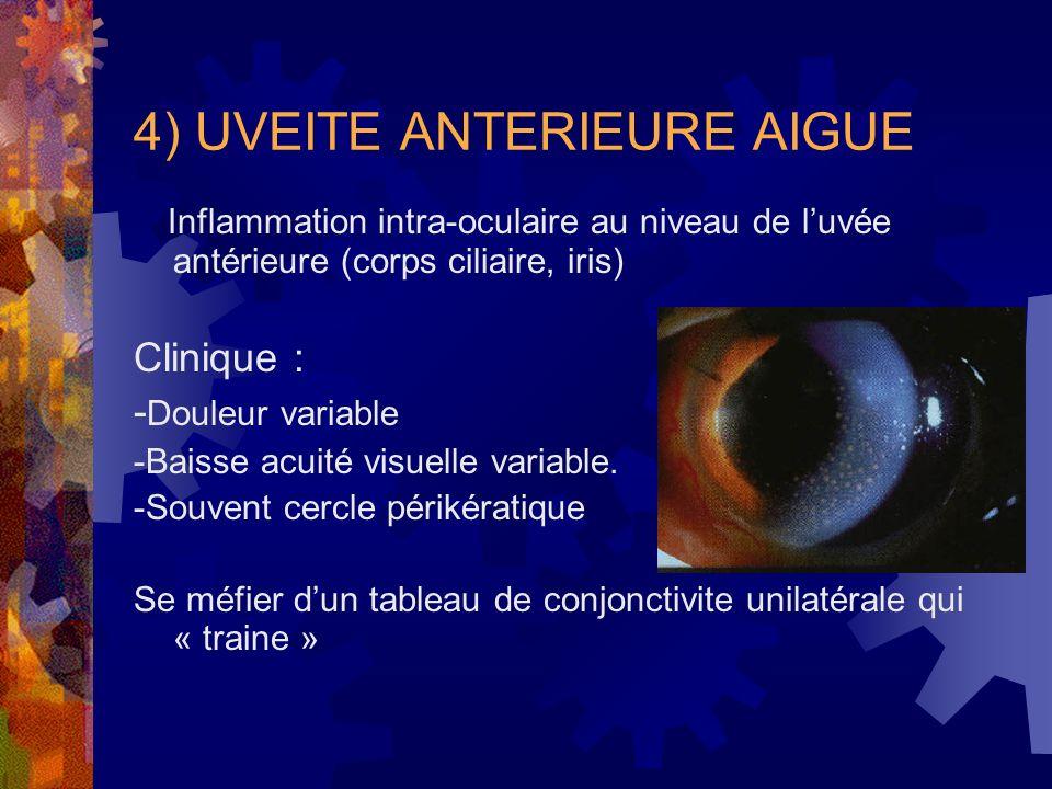4) UVEITE ANTERIEURE AIGUE