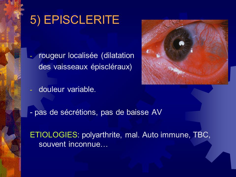 5) EPISCLERITE rougeur localisée (dilatation