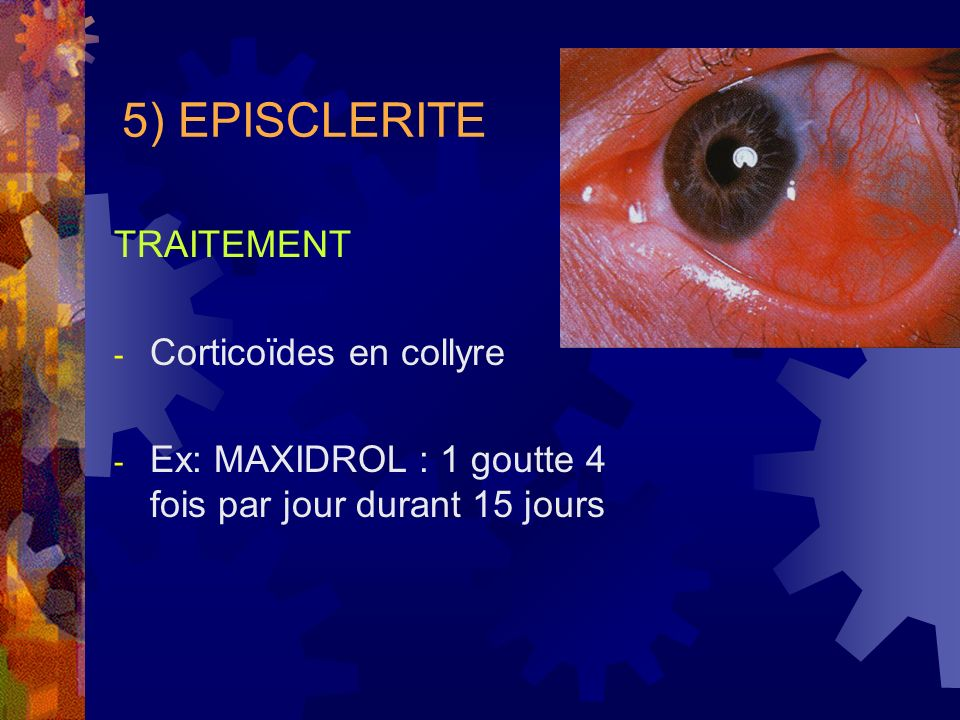 5) EPISCLERITE TRAITEMENT Corticoïdes en collyre