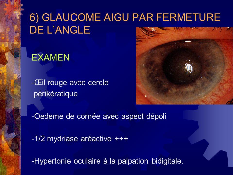 6) GLAUCOME AIGU PAR FERMETURE DE L'ANGLE