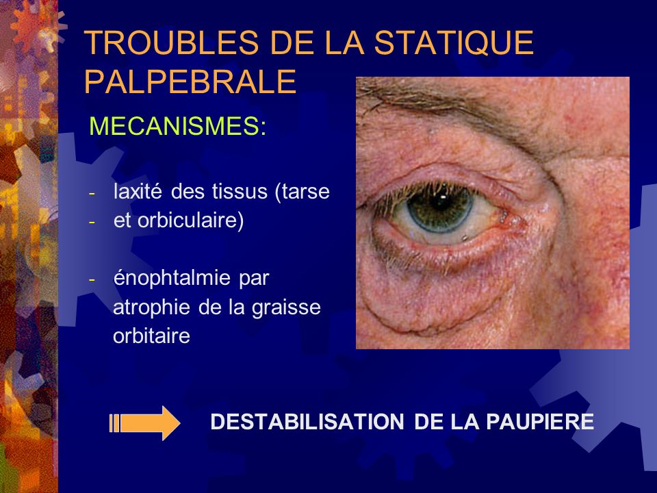 TROUBLES DE LA STATIQUE PALPEBRALE