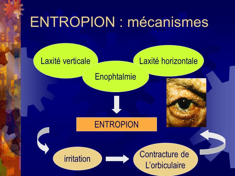 ENTROPION : mécanismes
