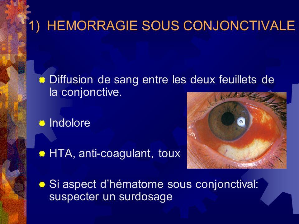 1) HEMORRAGIE SOUS CONJONCTIVALE