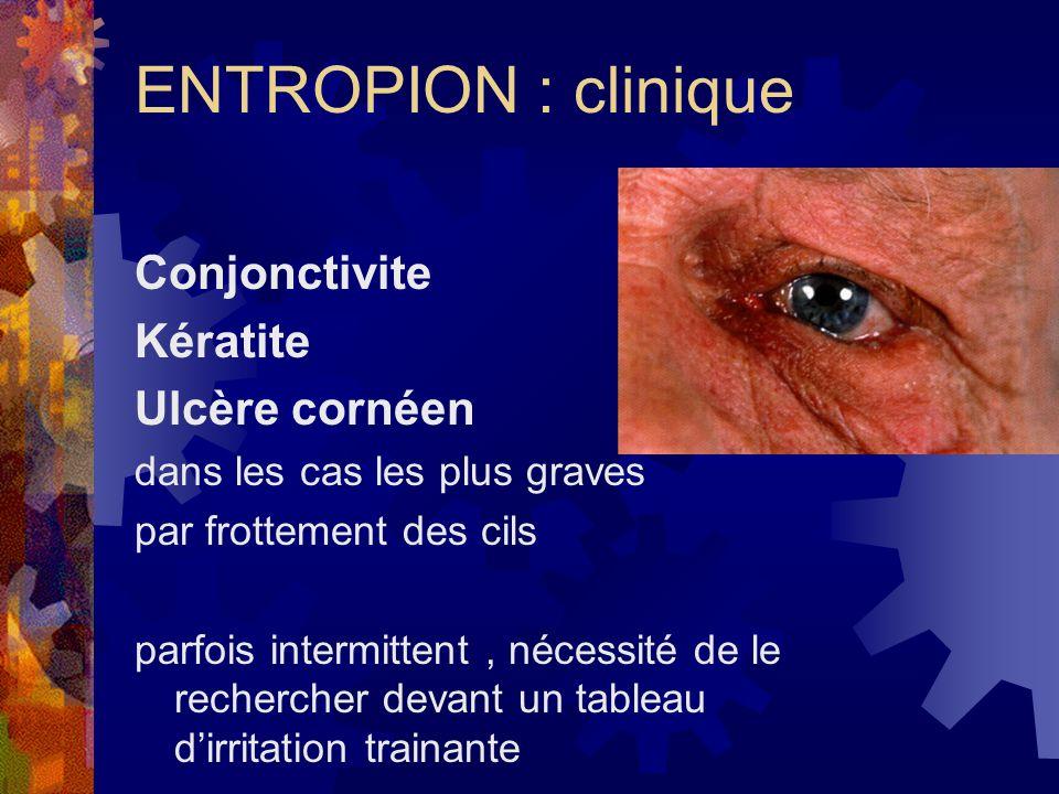 ENTROPION : clinique Conjonctivite Kératite Ulcère cornéen