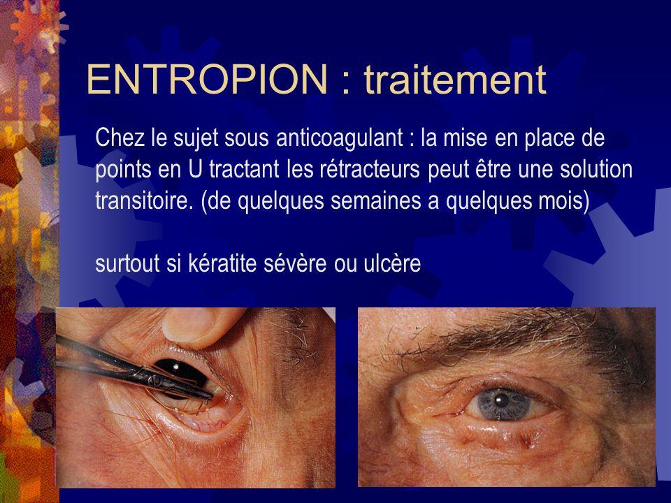 ENTROPION : traitement