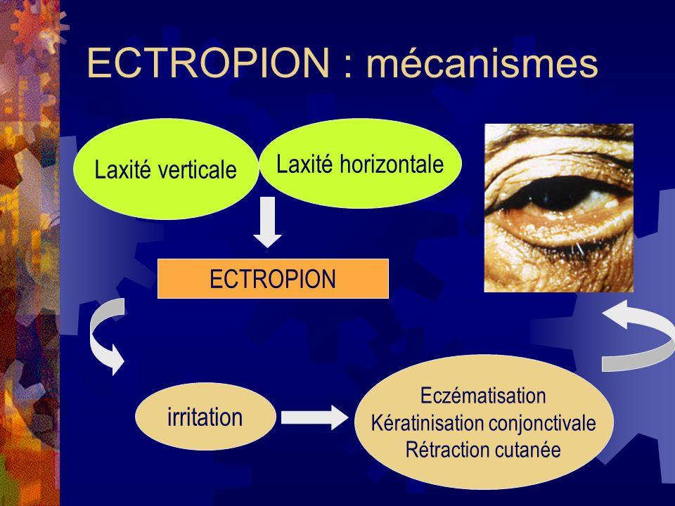 ECTROPION : mécanismes