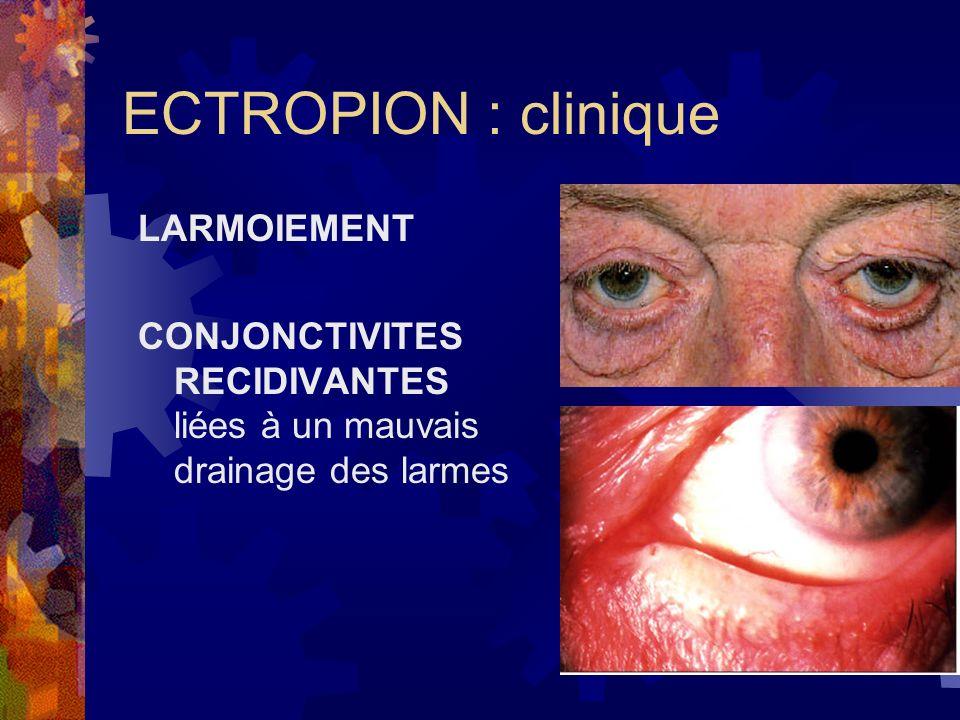 ECTROPION : clinique LARMOIEMENT