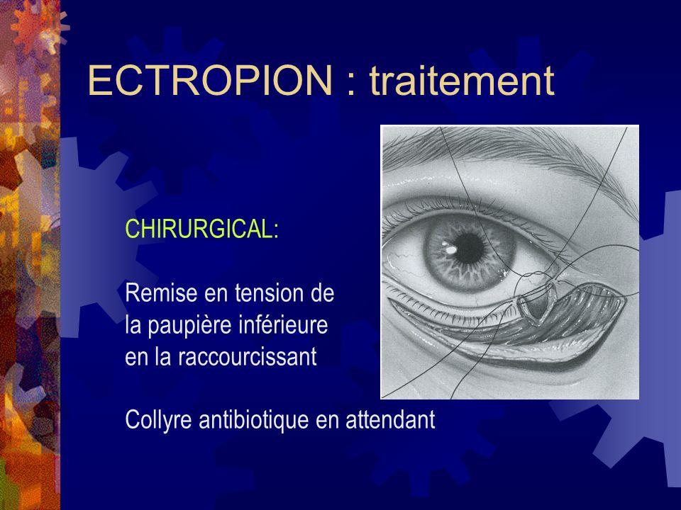 ECTROPION : traitement
