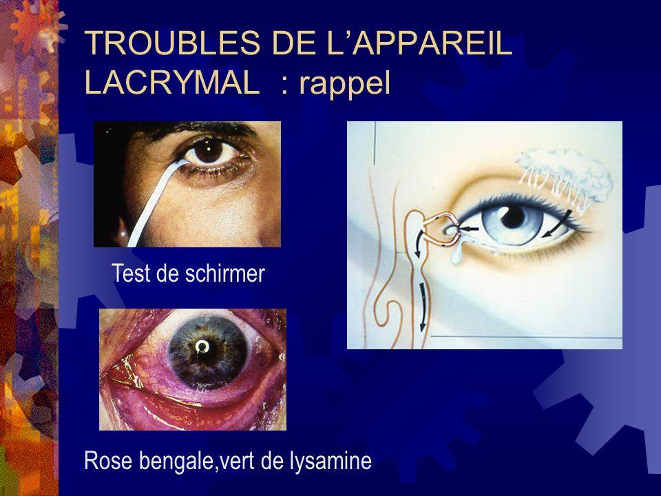 TROUBLES DE L'APPAREIL LACRYMAL : rappel