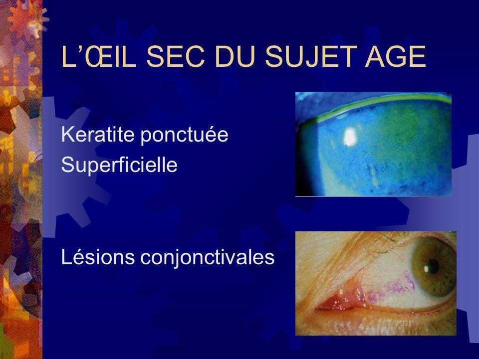 L'ŒIL SEC DU SUJET AGE Keratite ponctuée Superficielle