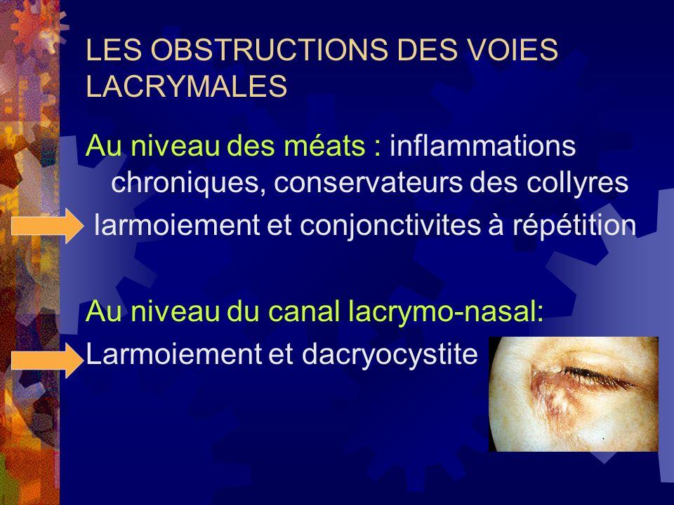 LES OBSTRUCTIONS DES VOIES LACRYMALES