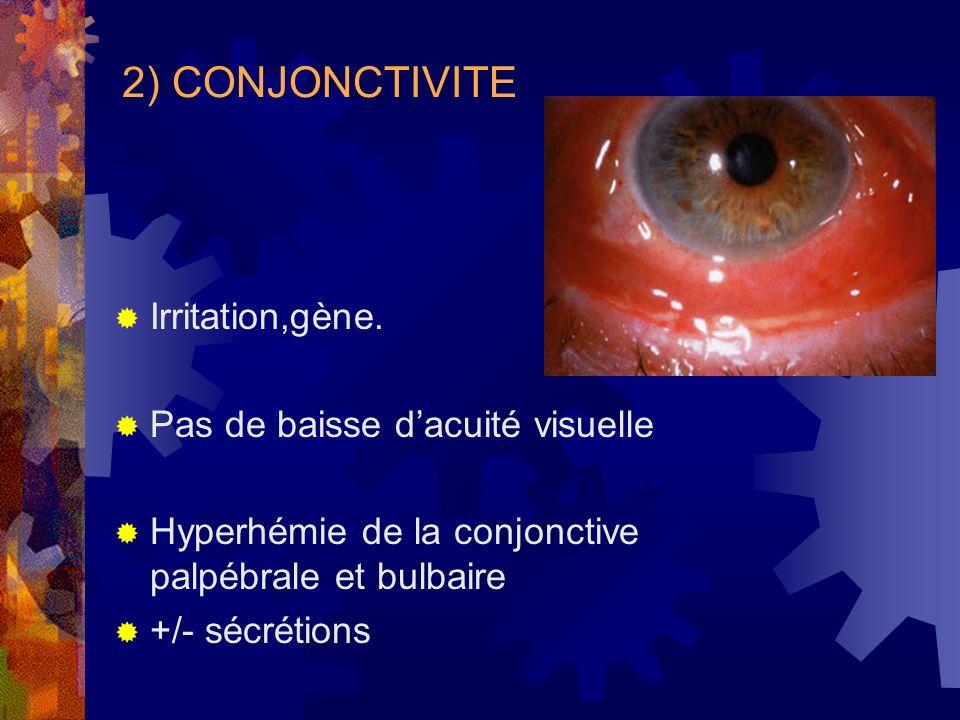 2) CONJONCTIVITE Irritation,gène. Pas de baisse d'acuité visuelle