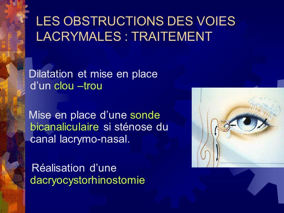 LES OBSTRUCTIONS DES VOIES LACRYMALES : TRAITEMENT