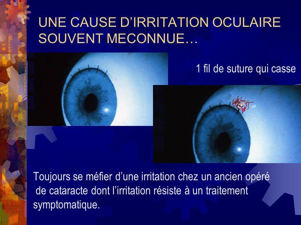 UNE CAUSE D'IRRITATION OCULAIRE SOUVENT MECONNUE…