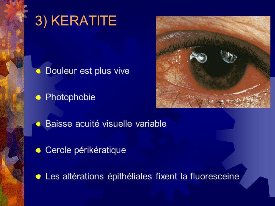3) KERATITE Douleur est plus vive Photophobie