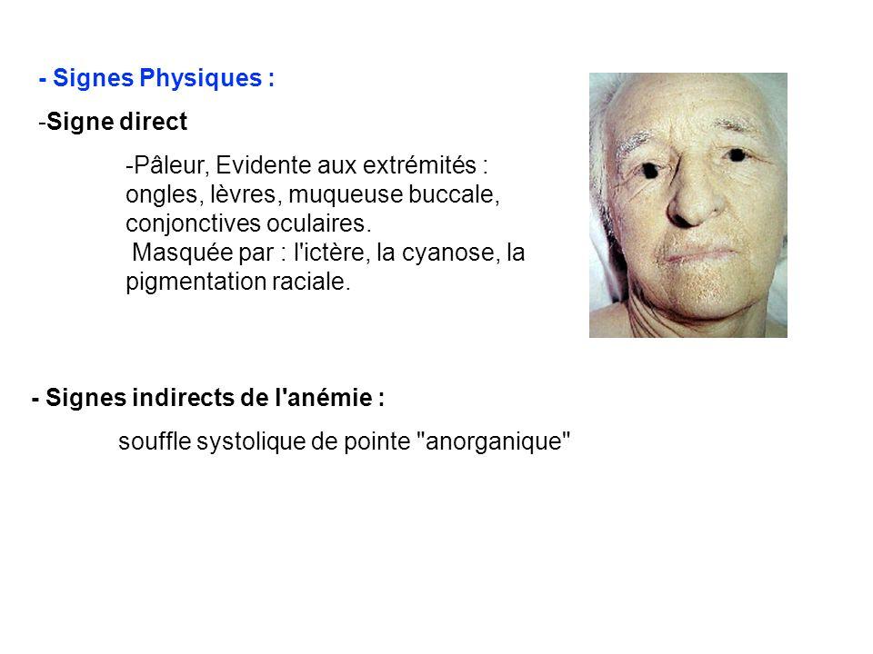 - Signes Physiques :Signe direct.