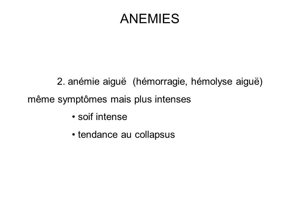 ANEMIES 2. anémie aiguë (hémorragie, hémolyse aiguë)