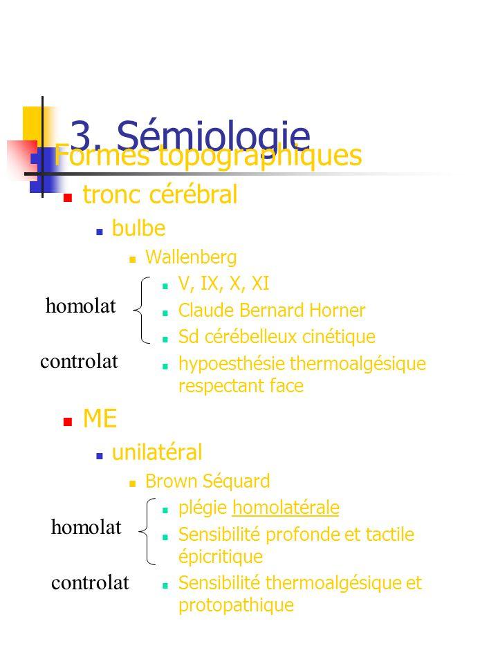 3. Sémiologie Formes topographiques tronc cérébral ME bulbe unilatéral