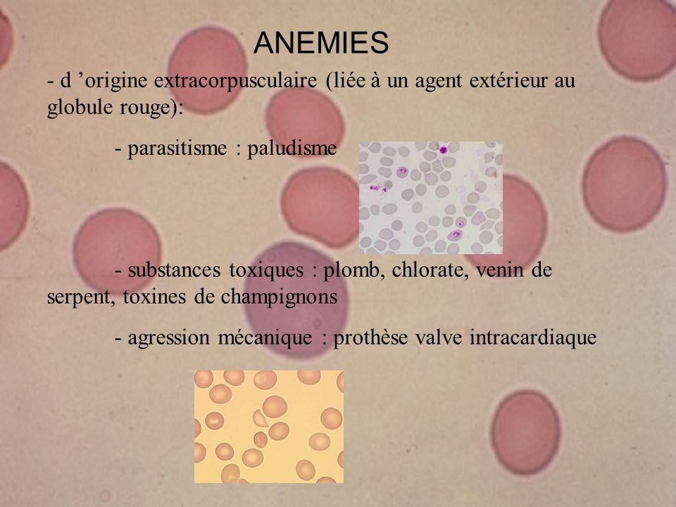 ANEMIES- d 'origine extracorpusculaire (liée à un agent extérieur au globule rouge): - parasitisme : paludisme.