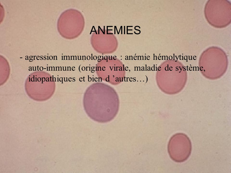 ANEMIES - agression immunologique : anémie hémolytique auto-immune (origine virale, maladie de système, idiopathiques et bien d 'autres…)