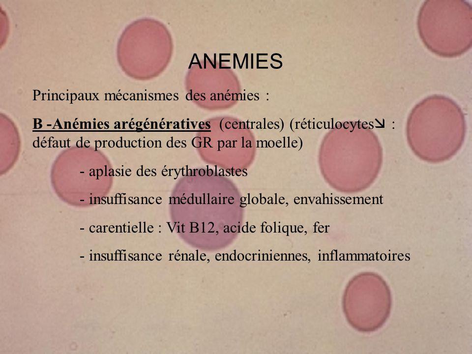 ANEMIES Principaux mécanismes des anémies :