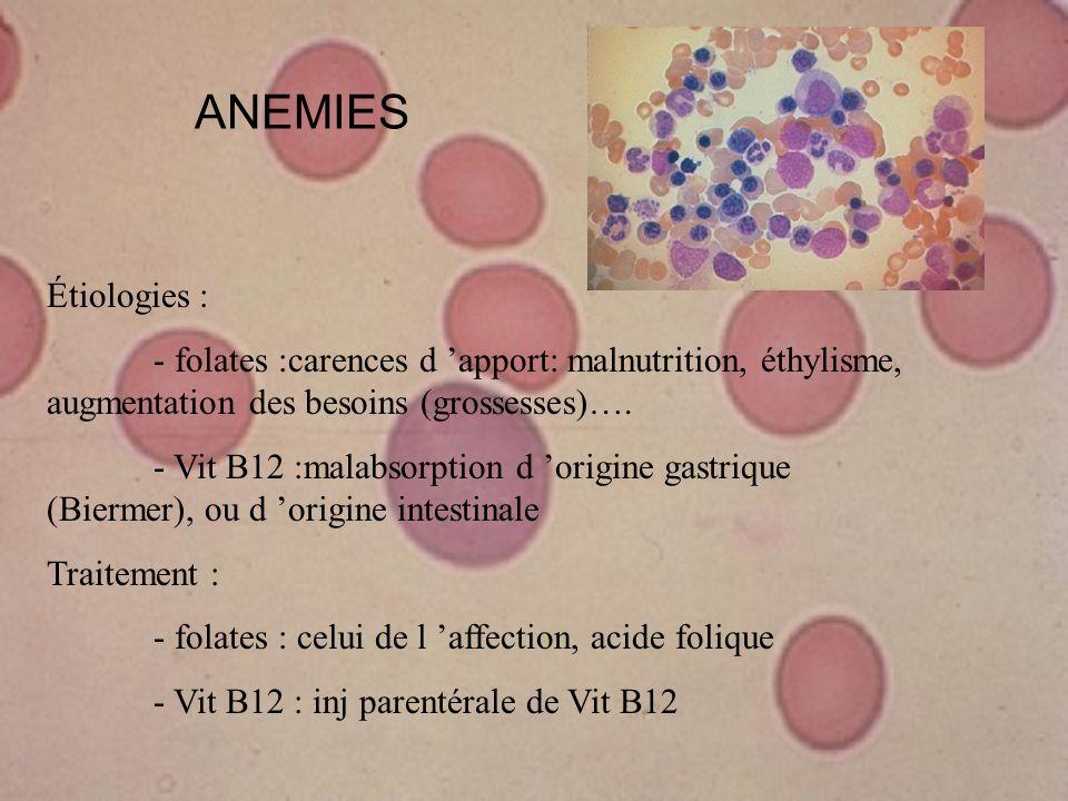 ANEMIESÉtiologies : - folates :carences d 'apport: malnutrition, éthylisme, augmentation des besoins (grossesses)….