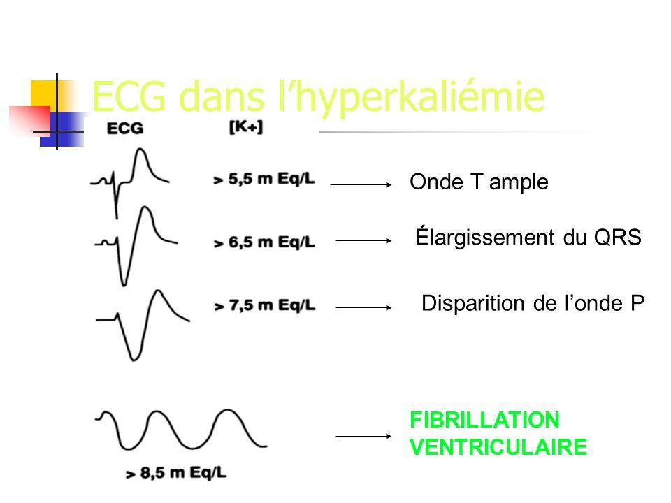 ECG dans l'hyperkaliémie