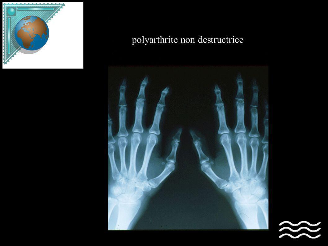 polyarthrite non destructrice