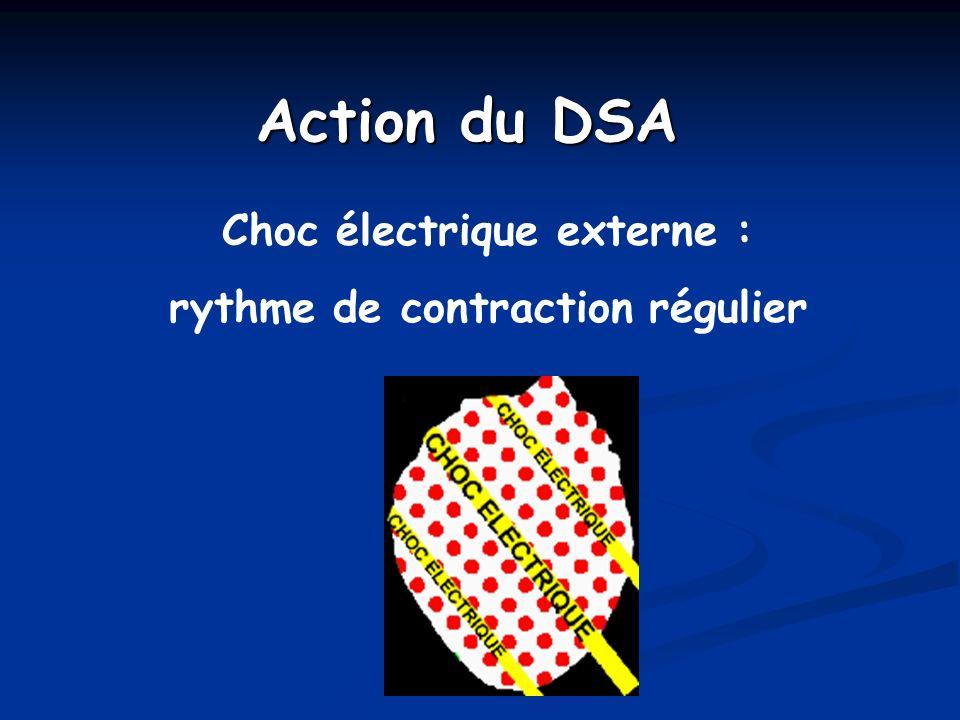 Choc électrique externe : rythme de contraction régulier