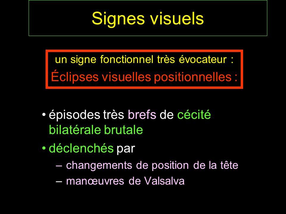 Signes visuels Éclipses visuelles positionnelles :