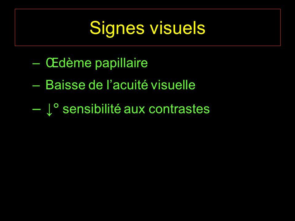 Signes visuels ↓ sensibilité aux contrastes Œdème papillaire