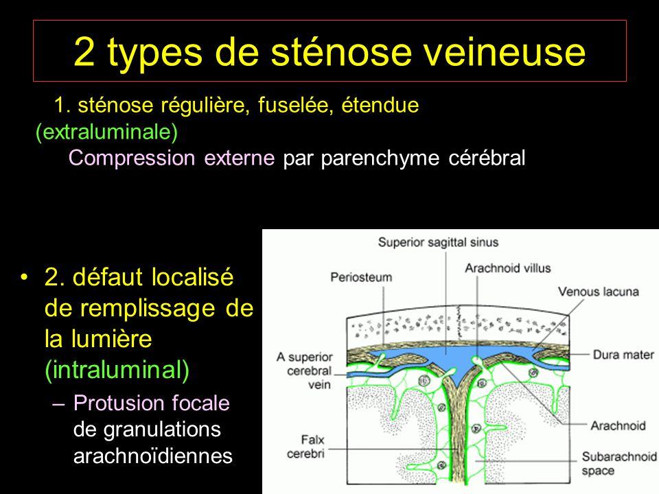 2 types de sténose veineuse