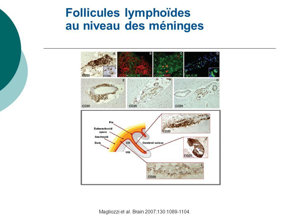 Magliozzi et al. Brain 2007;130:1089-1104.