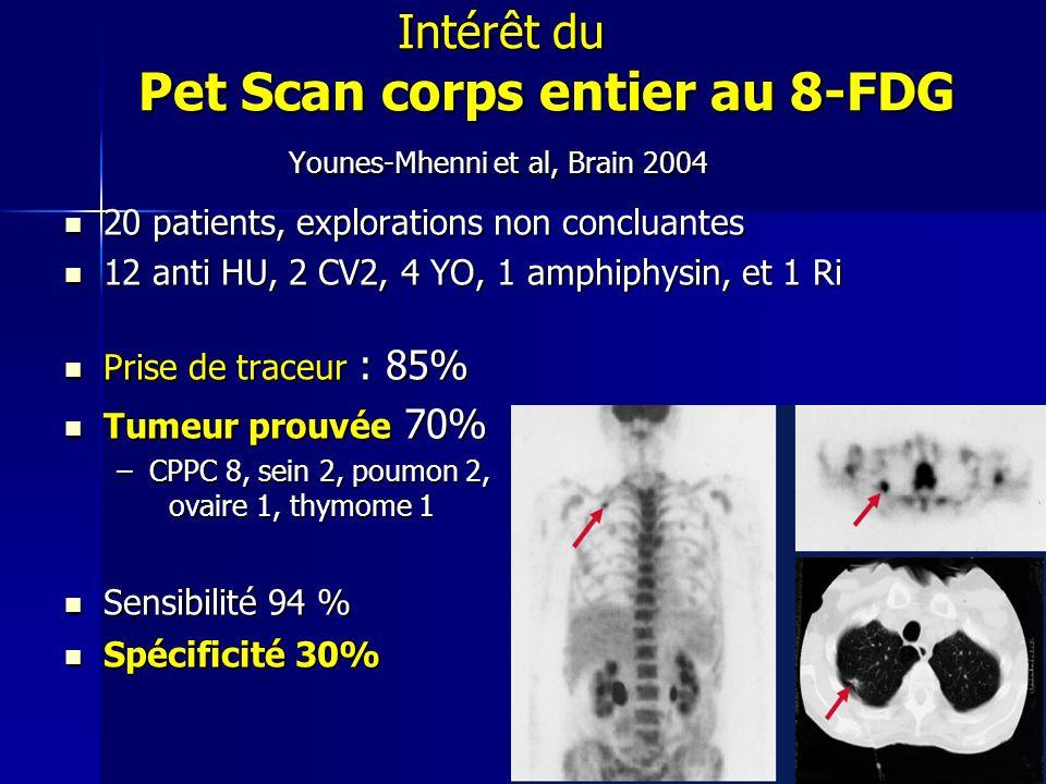 Intérêt du Pet Scan corps entier au 8-FDG