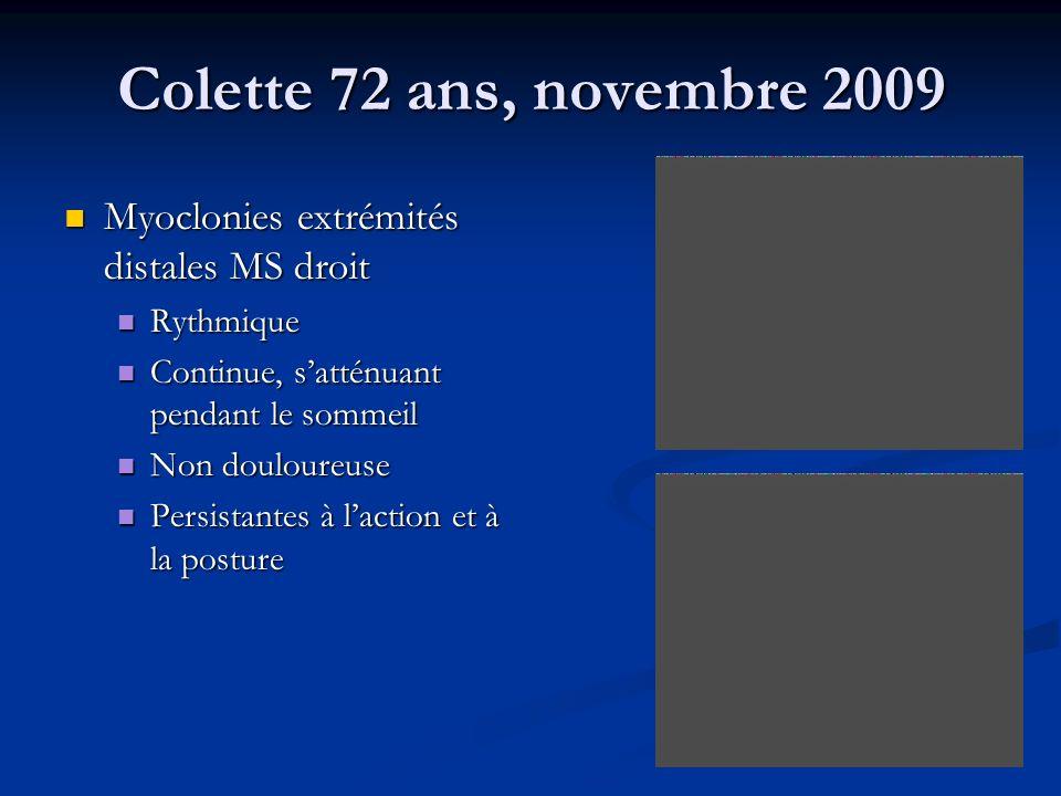 Colette 72 ans, novembre 2009 Myoclonies extrémités distales MS droit