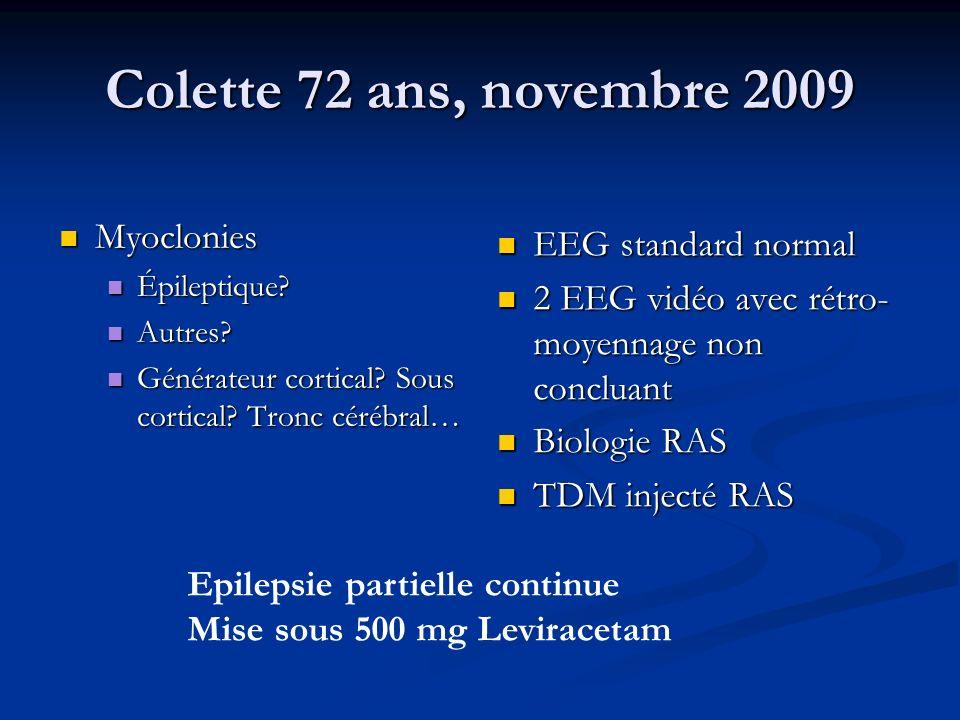 Colette 72 ans, novembre 2009 Myoclonies EEG standard normal