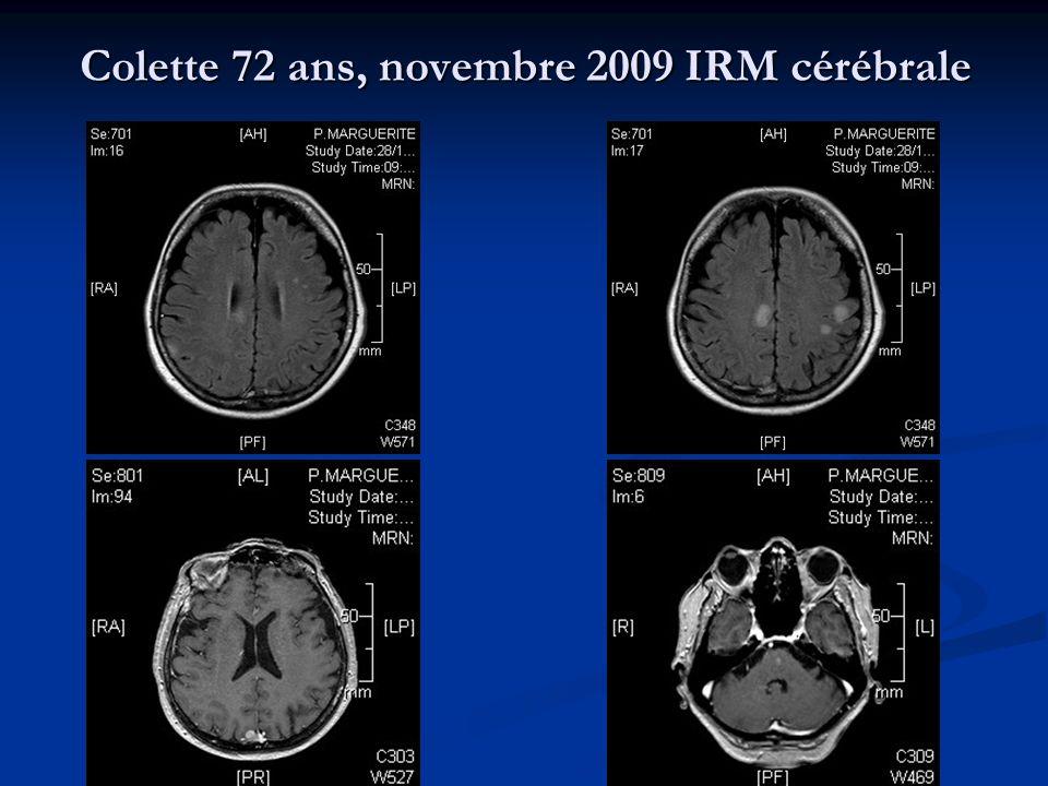 Colette 72 ans, novembre 2009 IRM cérébrale