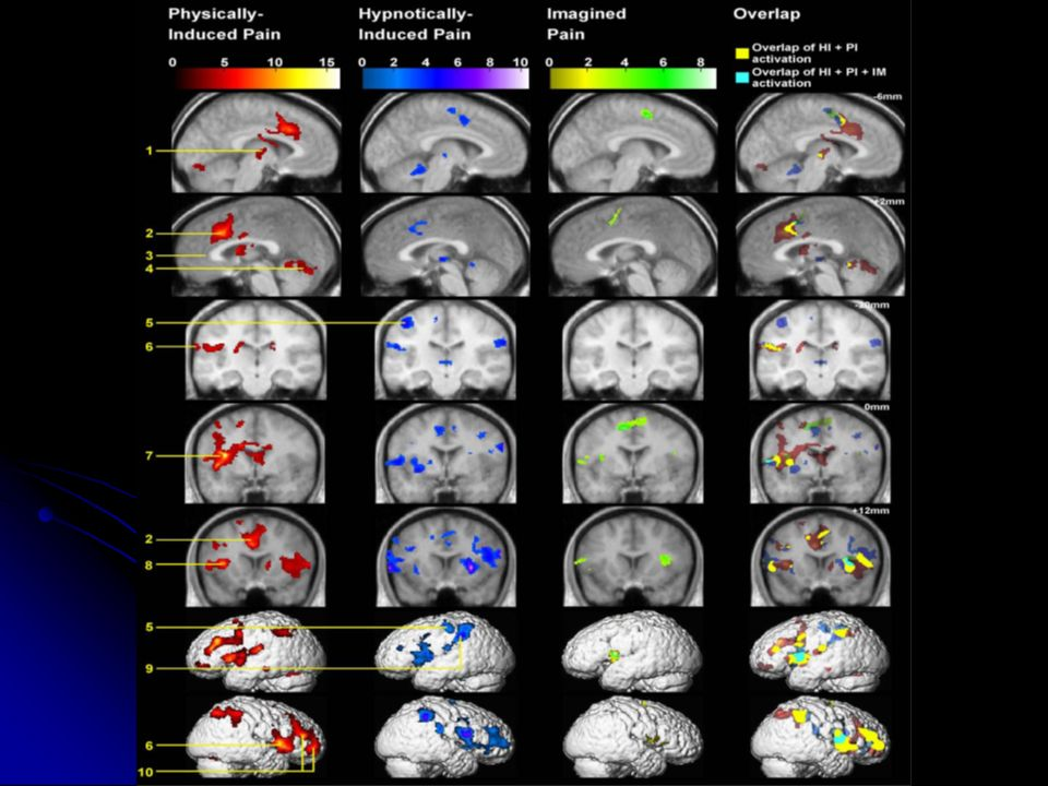 significant changes during this hypnotically induced (HI) pain experience within the thalamus and anterior cingulate (ACC), insula, prefrontal, and parietal