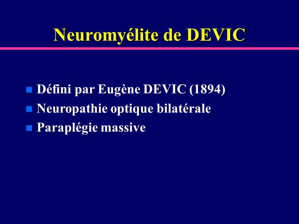 Neuromyélite de DEVIC Défini par Eugène DEVIC (1894)