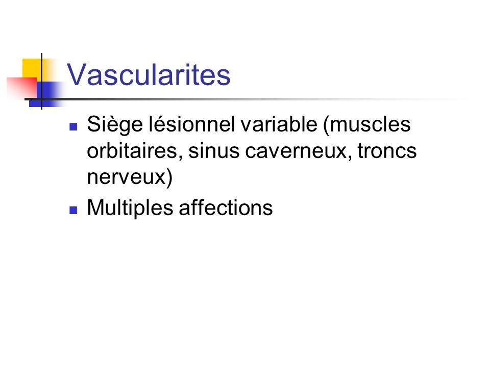 Vascularites Siège lésionnel variable (muscles orbitaires, sinus caverneux, troncs nerveux) Multiples affections.