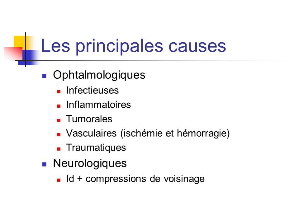 Les principales causes